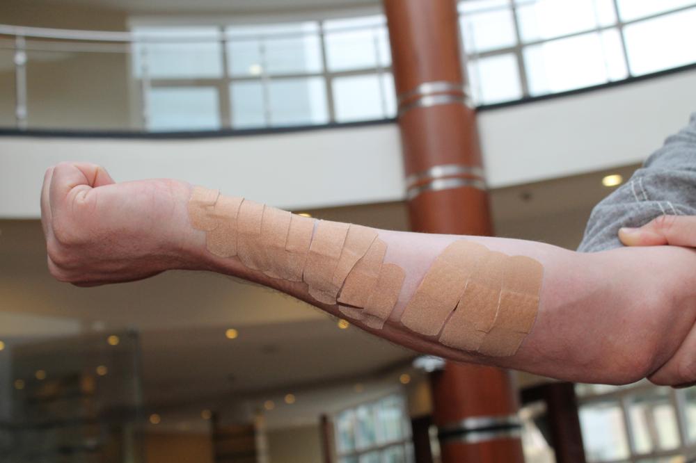 arm-bandage